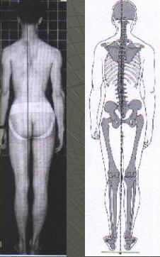 Basculación lateral de la pelvis