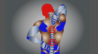 Vivir con dolor de espalda por Soy Maratonista
